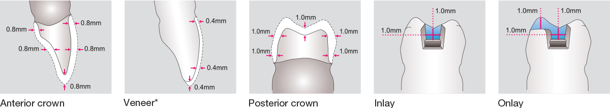 Zirconia STML Minimal Wall Thickness